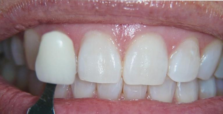 In-Office-Teeth-Whitening-After-Image