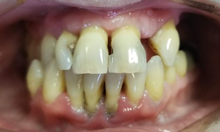 Bridges-crowns-and-partials-Before-Image