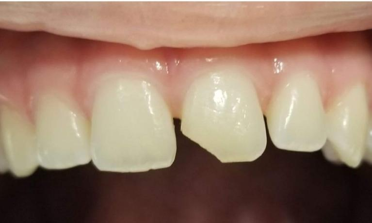 Chipped-front-tooth-Before-Image