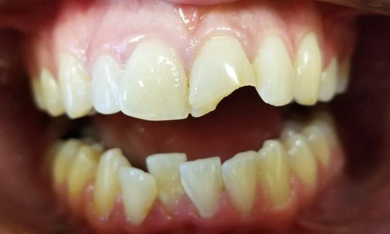 Front-Chpped-Tooth-Before-Image