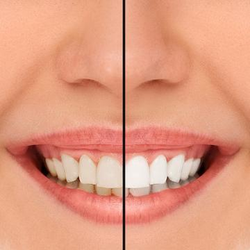 before and after teeth whitening l mesquite dental